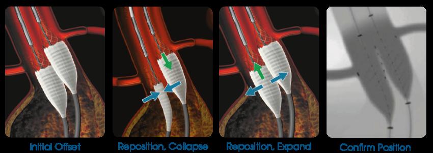 Altura Bi-lateral endografts
